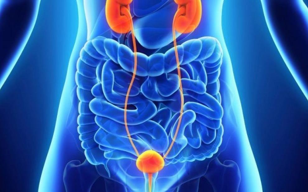 pdta cáncer de próstata nápoles