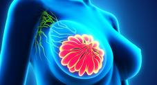 Napoli, scoperto il farmaco per l'osteoporosi che cura la recidiva nei tumori al seno