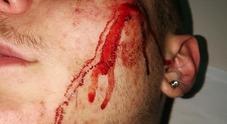 Napoli, 16enne rapinato e sfregiato all'uscita della metropolitana