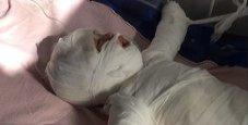Immagine Bimba di 11 mesi cade nella pentola bollente