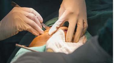 evitare la biopsia prostatica