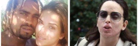 Gessica Notaro, su Fb insulti choc: gli haters identificati e denunciati