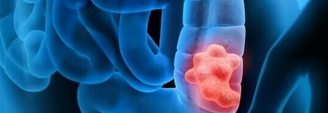 Cancro al colon, i ricercatori del Cnr di Napoli: «La cura con un sistema intelligente»