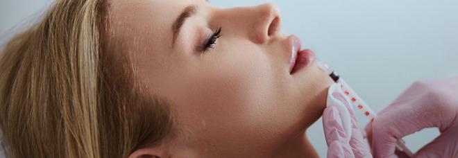 Roma, arriva in Italia il primo Botox Bar: menù a base di botox e ialuronico
