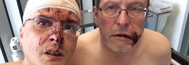 Fumettista italiano e marito picchiati, aggressione omofoba in Belgio