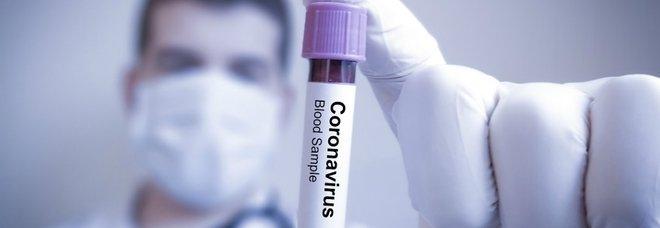 Covid, arriva in Italia ma non è vaccinata: donna morta a Teramo