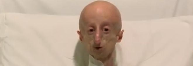 Sammy Basso: «Cammino a 7 giorni dall'intervento, c'è speranza per chi ha la progeria»