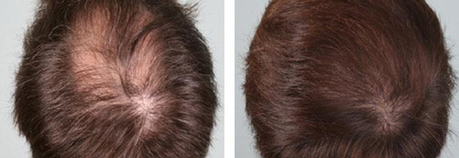 Scoperta l arma anti-calvizia  è l insulina. Ecco in quanto tempo fa  crescere i capelli. c4a799f247e6