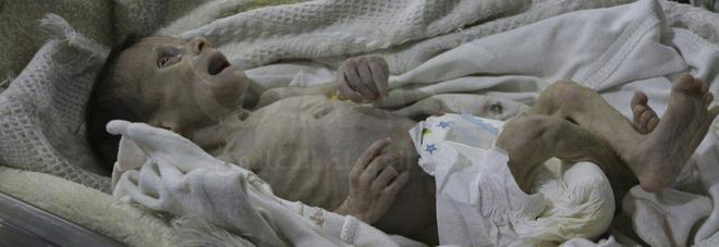 La piccola Sahar muore di fame a un mese di vita: vittima dell'atrocità della guerra in Siria
