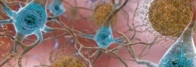 Alzheimer, nuovo trattamento sviluppato sulle scimmie arresta la progressione: speranze per il trattamento malattia