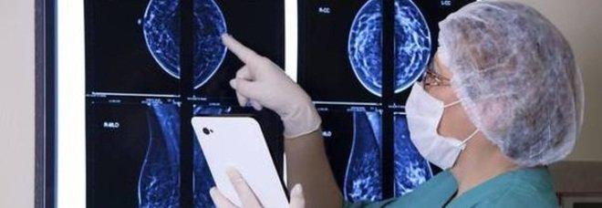 Tumore seno, scoperta causa resistenza a farmaci: passo verso nuove cure