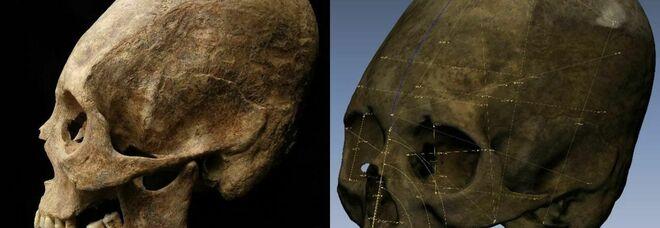 Cranio di donna allungato scoperto nelle catacombe di Chiusi: «Fu deformato volontariamente»