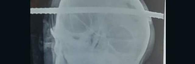 Sbarra d'acciaio conficcata nel cranio, operaio 21enne vivo per miracolo