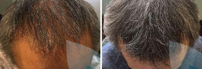 Prima c era il PRP Capelli. Ottime novità per chi soffre di perdita dei  capelli 74d4f48f3e51