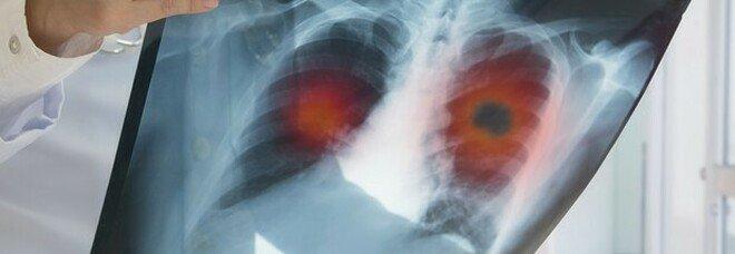 Tumore al polmone, scoperti quattro sottotipi di adenocarcinoma: la ricerca italiana