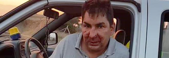 «Non gettate rifiuti nel parco», muratore massacrato da 7 persone