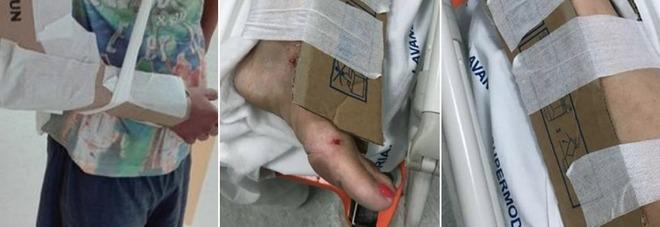 Cartoni usati come gessi per immobilizzare le fratture, incredibile all'ospedale di Reggio Calabria