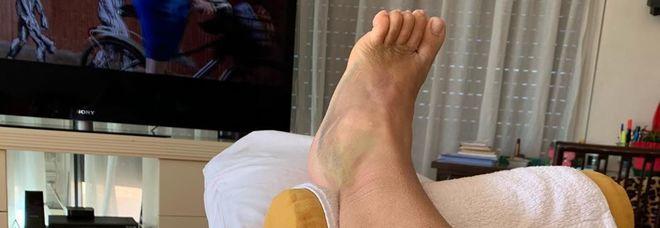 Mara Venier e il piede dolorante: «Dopo tre settimane... ancora così»