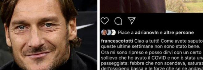 Francesco Totti e il Covid: «Ho avuto una polmonite bilaterale, le forza andavano via». Curato dal medico di Berlusconi