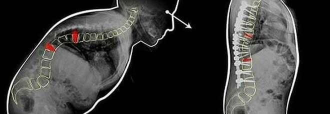 """Schiena piegata in due, da anni sulla sedia a rotelle: operata a Bologna, le """"sfilano"""" due vertebre e torna a camminare"""