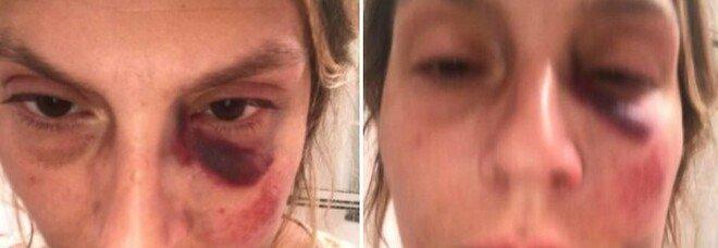 Aggredita in strada da «4 vicini di spiaggia senza motivo, nessuno mi ha aiutata»: la denuncia di una professoressa