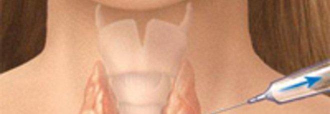 Settimana mondiale della tiroide: in Campania molta disinformazione e scarsa prevenzione