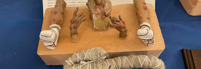 Pianeta Pandemia, a Matera mostra ed eventi a cura del Museo Arti Sanitarie Napoli