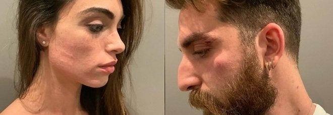 Lorella Boccia e Niccolò Presta aggrediti a Roma, come stanno: il comunicato ufficiale