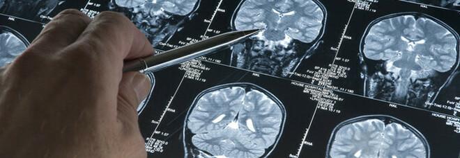 Glioblastoma, scoperto un possibile bersaglio del più aggressivo tumore al cervello: una proteina al centro di uno studio
