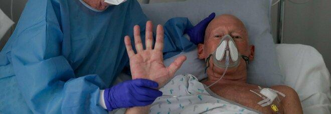 Covid, cos'è la nebbia cognitiva che colpisce un malato su tre: cervello coinvolto quanto i polmoni