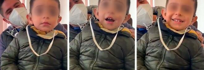 Bambino sordo di due anni sente per la prima volta la voce del padre, ecco la sua reazione