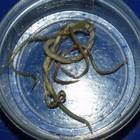 Infezione da vermi intestinali in una scuola di Pozzuoli: è psicosi
