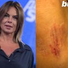 Paola Perego cade su una buca e attacca: «Grazie al Comune di Roma»