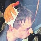 Napoli, ferito a 16 anni dai calcinacci: «Se mi salvo mai più in questa città»