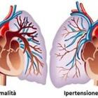 Ipertensione polmonare, esperti a confronto: «Mettiamola alla corde»