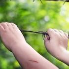 Bimba colpita da tetano: non era vaccinata
