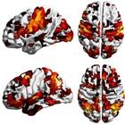 Trovata nel cervello la culla della schizofrenia: la svolta da scienziati italiani