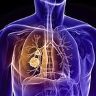 «Tumori sconfitti nel 2050 con l'immunoterapia»