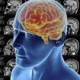 Tumore al cervello, un algoritmo prevede la gravità della malattia